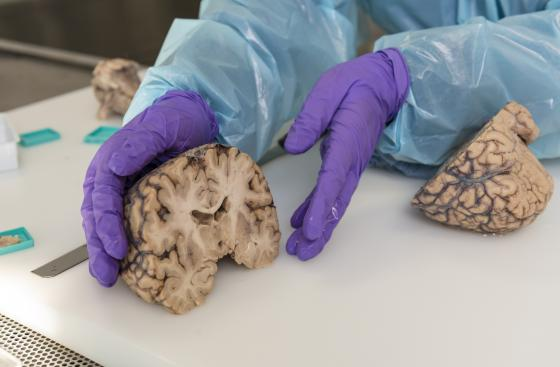 A scientist at the Parkinson's UK brain bank presents brain tissue