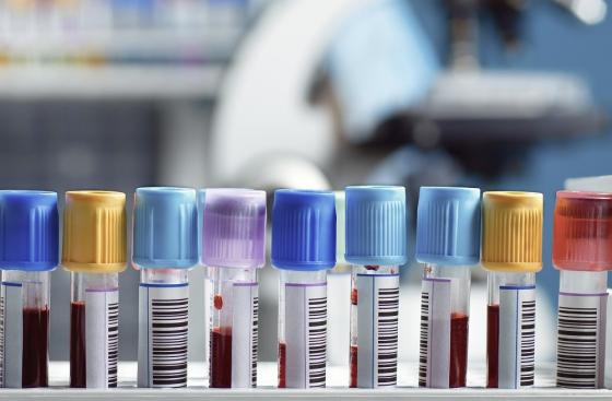 Image of blood samples in the lab