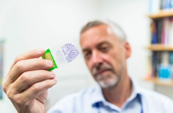 Researcher, Steve Gentleman, holds up a glass slide with a brain tissue