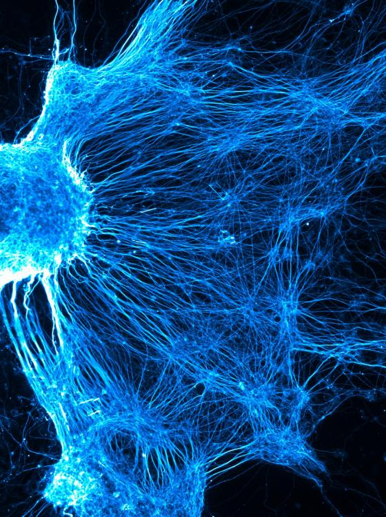 A complex network of neurons develops as stem cells (iPSCs) derived from the skin of a sporadic Parkinson's patient are differentiated in vitro into dopaminergic neurons. By Hugo Fernandes, University of Oxford, runner-up in Picturing Parkinson's 2016